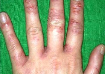 Eczema – What causes it and how can you help get rid of it