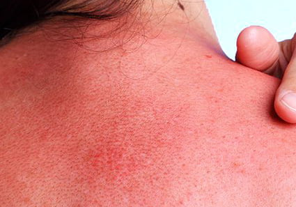 Ouch! Sunburn hurts. What to do right away and after