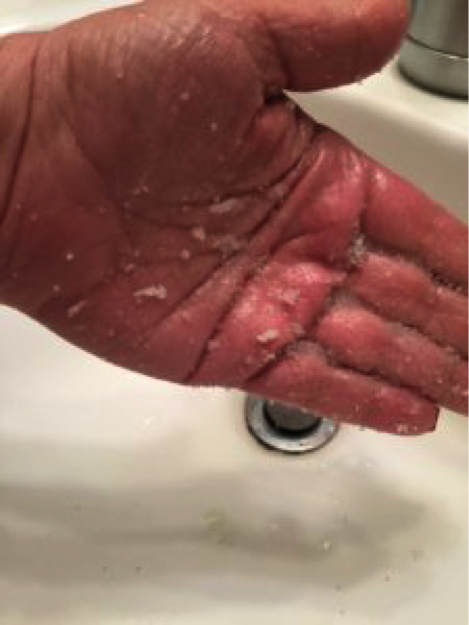 hand with scrub on it
