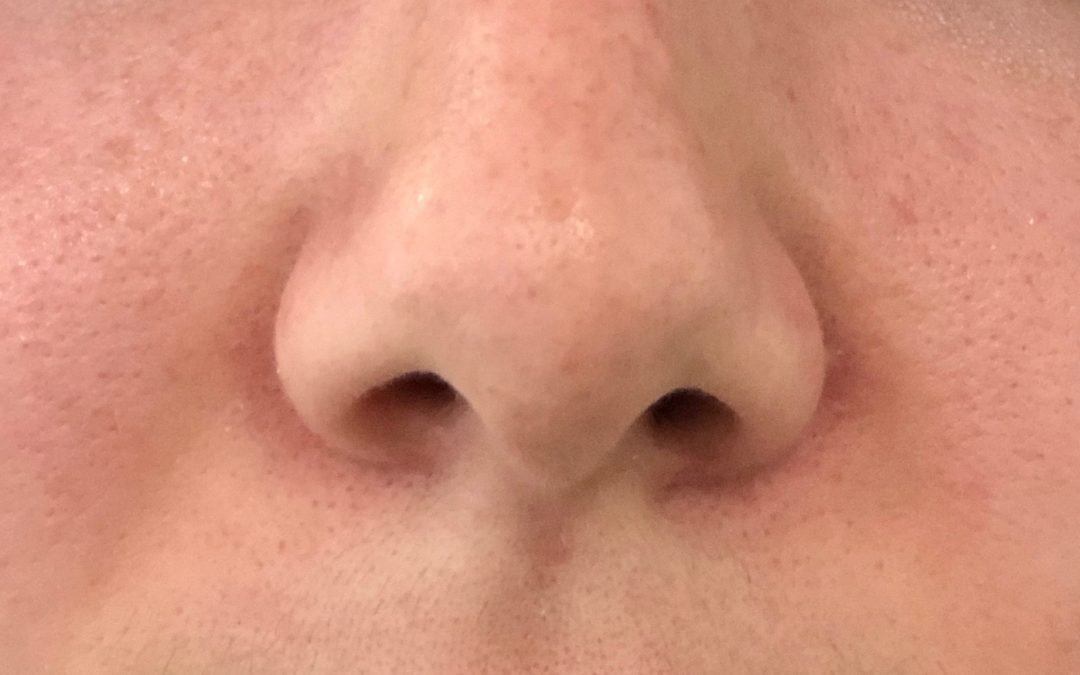 Pore Size! Can I Really Shrink Them?