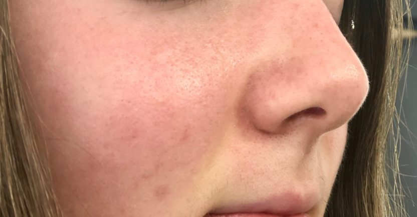 Large Pores on Skin