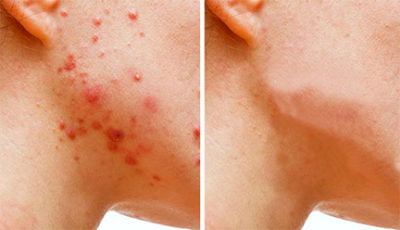 Adult Acne Sucks! What The Heck Happened To My Skin?