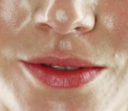 Oily Skin Can Make You Feel Self Conscience. Here's How to Treat It.
