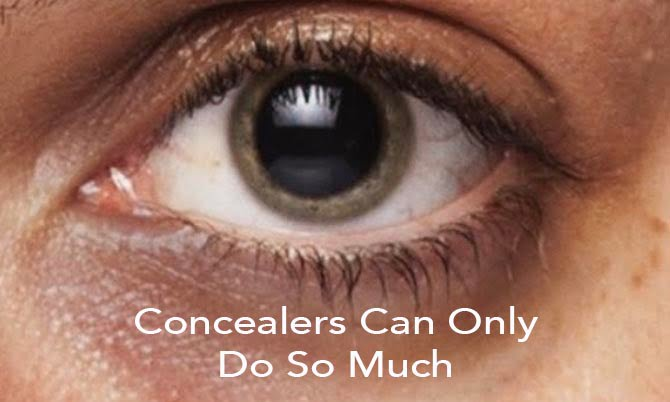 Concealers can only do so much – 7 tips for dark circles