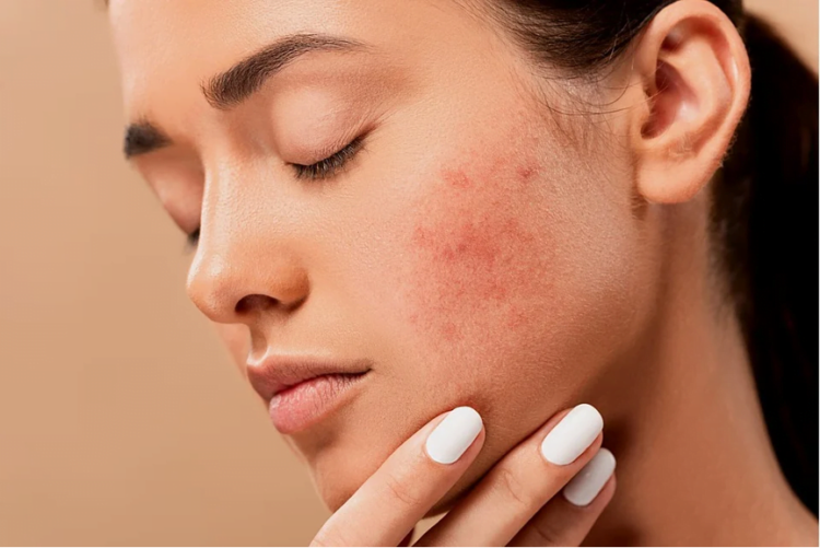 Effects of Stress on the Skin